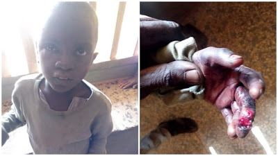 Father Burns His Son's Buttocks With Hot Aluminum Over Missing Fish