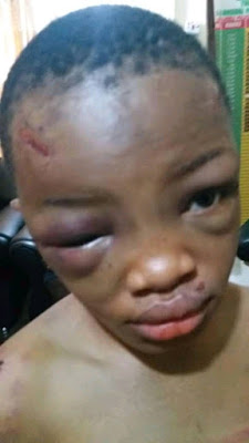 PHOTOS: 40-year-old Man Arrested For Brutally Assaulting His 9-year-old Niece