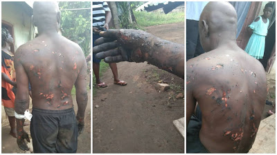PHOTOS: SA To Cross River Gov Allegedly Burns Man After He Had A Dream That He Betrayed Him
