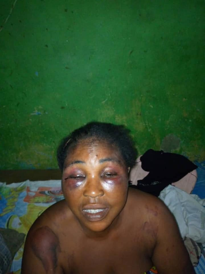 Councilor And Siblings Assaults Their Brother's Wife After Accusing Her Of Being A witch