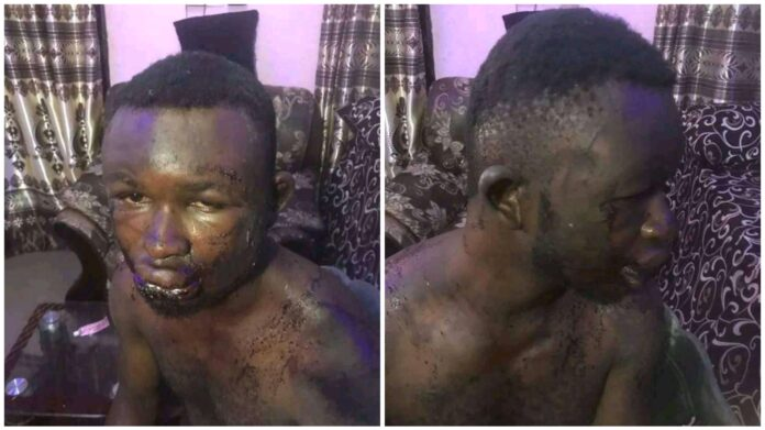 Man Brutalised By Soldiers Who Mistook Him For Someone Else