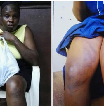 23-year-old Lady Beaten And Stripped By Her Employer Over Theft In Edo (Photos)